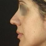 rinoplastica11prima